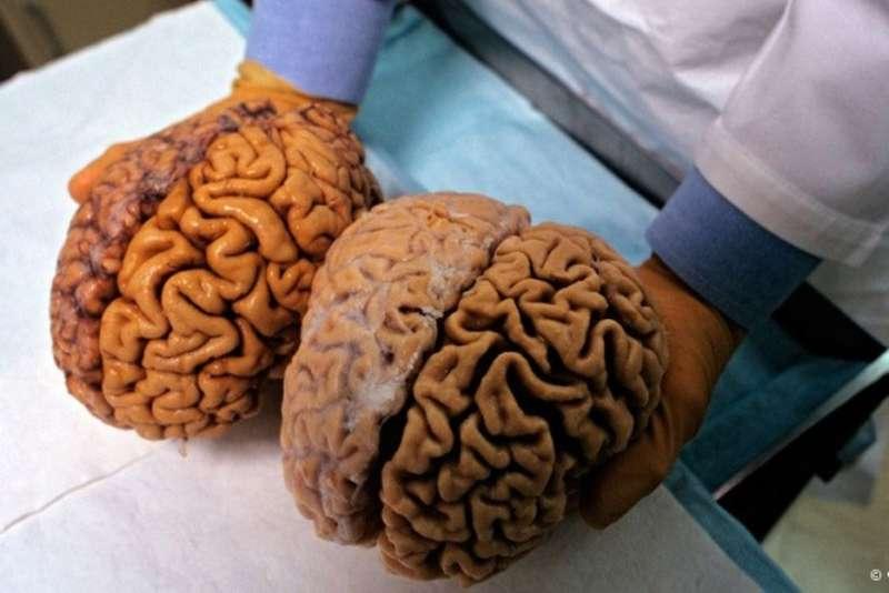 Розум не залежить від розміру мозку– вчені